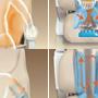 massaggio schiena poltrona iRest A18-3